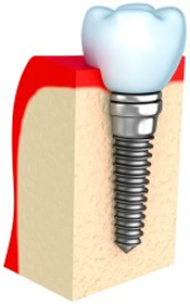 Prevent Peri-Implant Disease and Dental Implant Infection