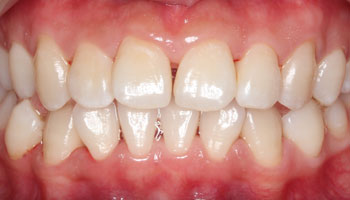 Teeth after professional deep cleaning and water flossing