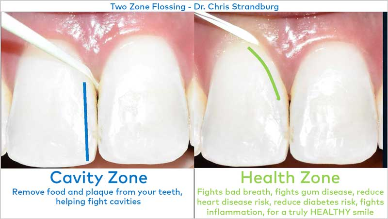 Teeth and gums - showing two zone flossing