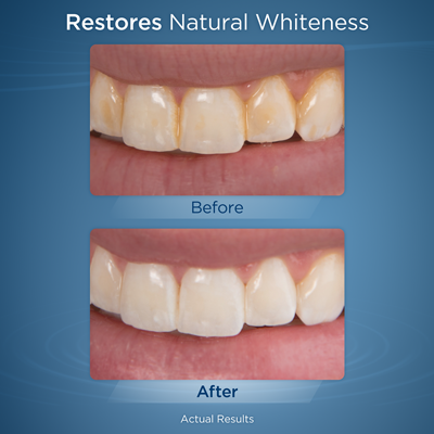 Whitening Water Flosser Before and After