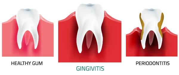 Pregnancy Gingivitis - treatment, symptoms, causes