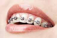 Smiling with dental braces