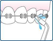 Move the flosser tip around the braces and along the teeth and gums