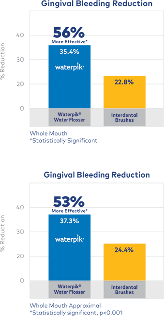Water Flosser more effective for reducing gingival bleeding
